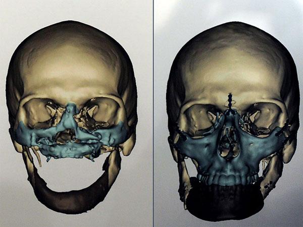 В США врачи успешно провели «самую масштабную» операцию по пересадке лица (фото)