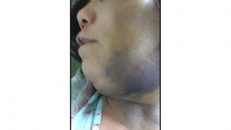 Милиция задержала подозреваемого визнасиловании 56-летней женщины