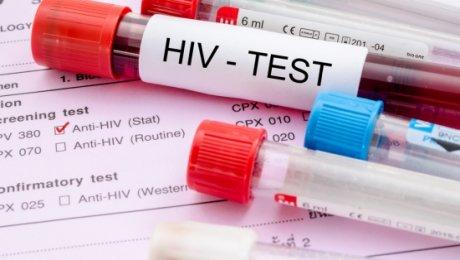 Медперсонал бьют тревогу: вПодмосковье растет число людей сВИЧ-инфекцией