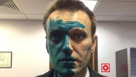 Навальный поведал онепроходящем после нападения ожоге глаза