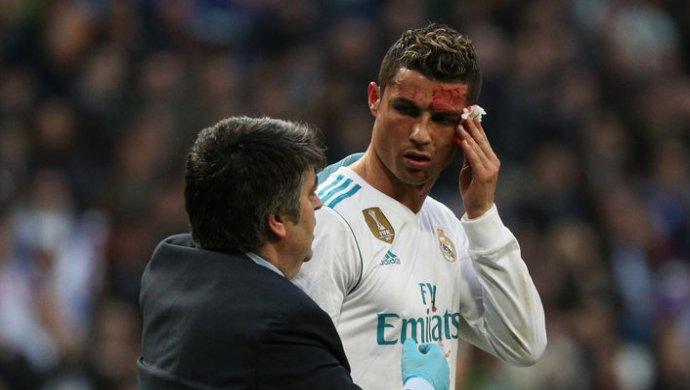 Криштиану Роналду разбили лицо вматче сДепортиво