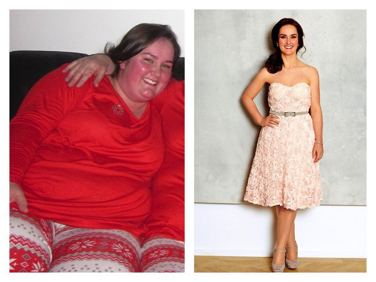 Истории большого похудения