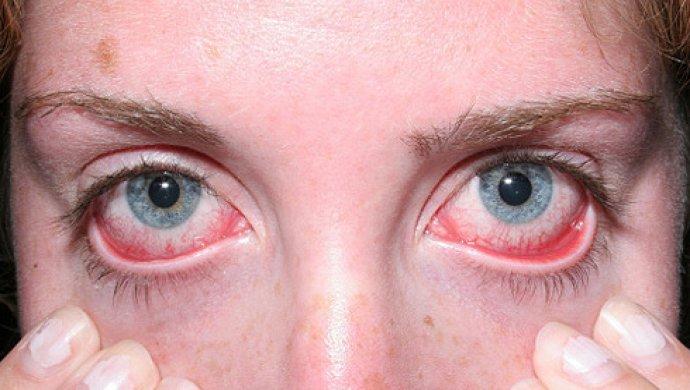 Картинки по запросу Воспаление глазной роговицы и его лечение