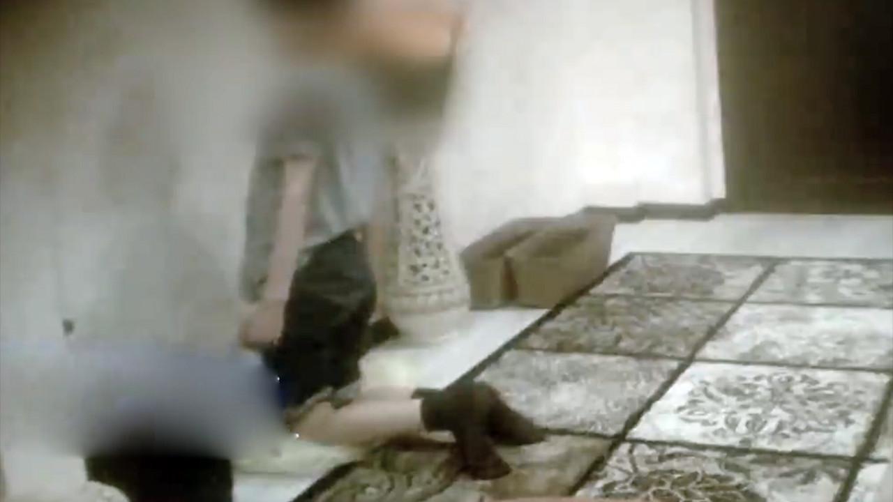 Родители заставляли ребенка в наказание стоять на гречке, она вросла в кожу (Фото) 1