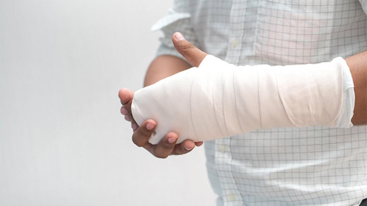 срокам картинки про перелом руки считают