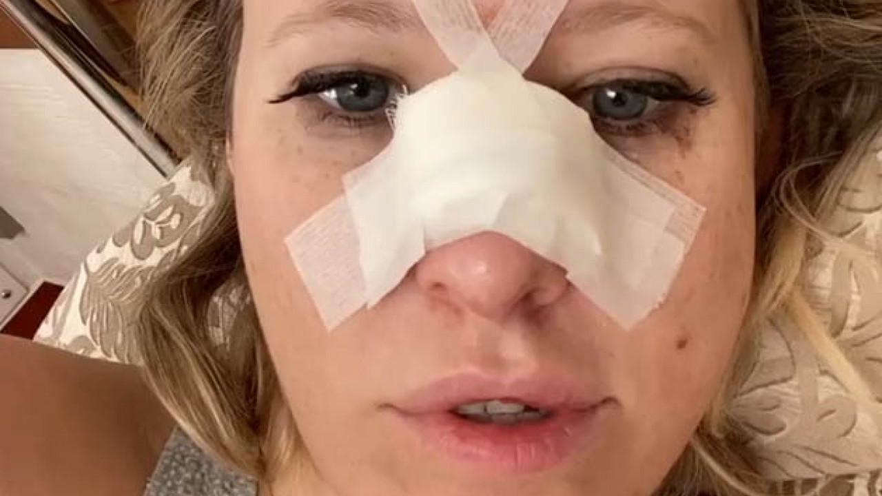 Собчак рассказала, откуда у нее сотрясение и почему сломан нос