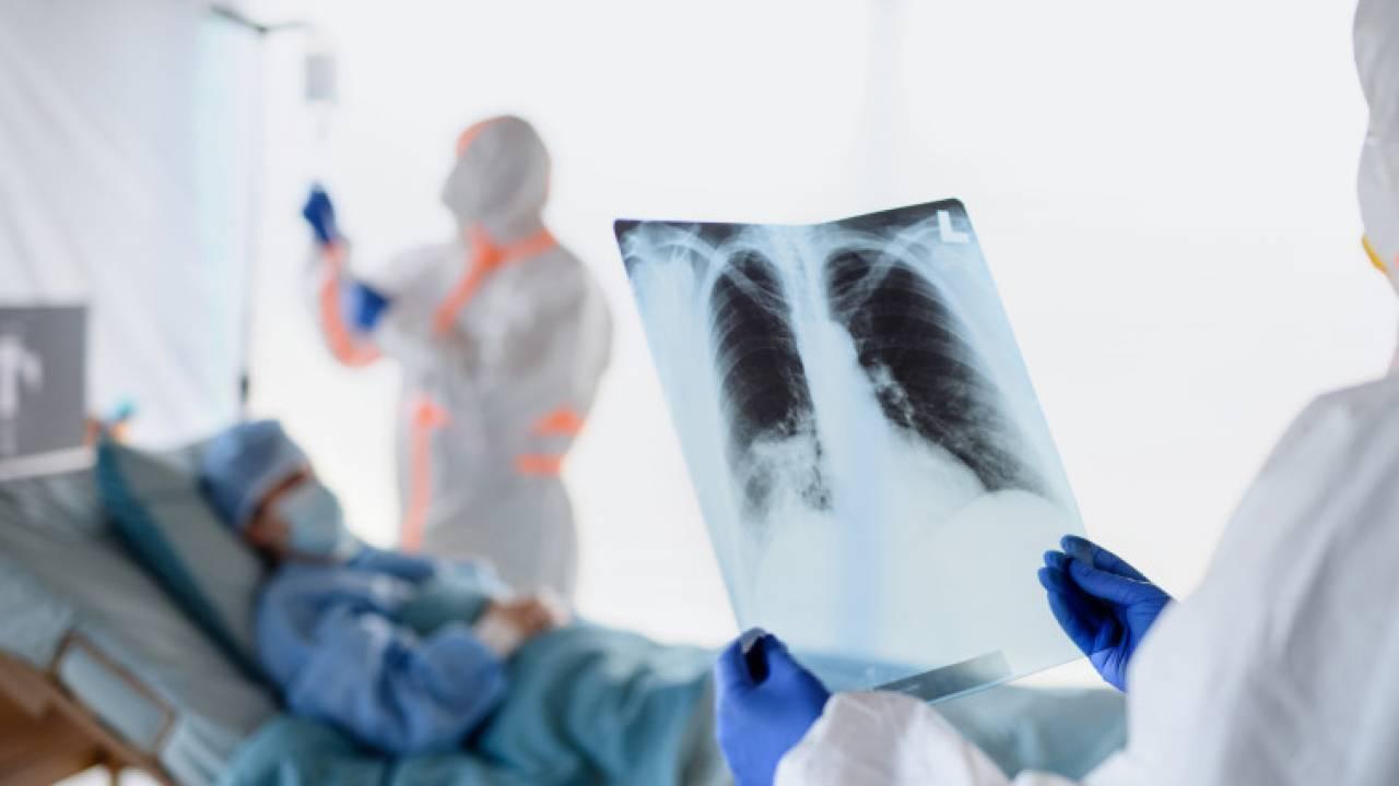 Еще 10 казахстанцев скончались от коронавируса и пневмонии